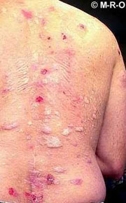 http://www.morgellons-research.org/morgellons/morgellons-sufferer3.htm